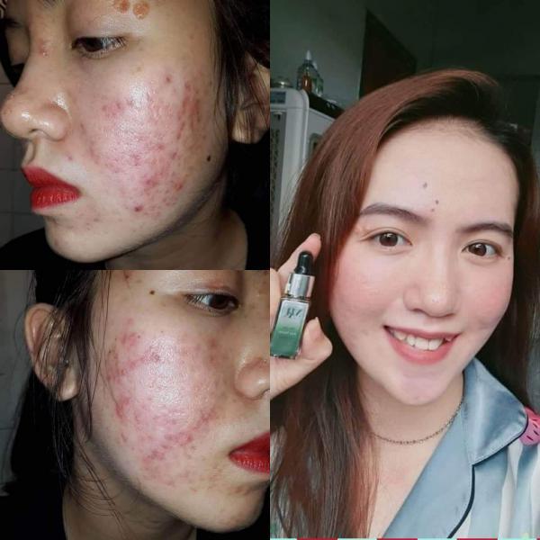 Review serum trị mụn Dr Mai