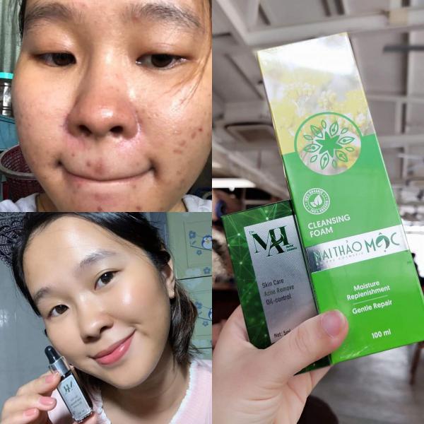 Review hiệu quả serum trị mụn Dr Mai
