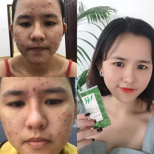 Review trị mụn Dr Mai